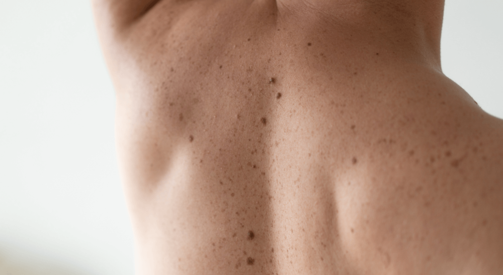 Biopsie de la peau : que se passe-t-il avant, pendant et après ?