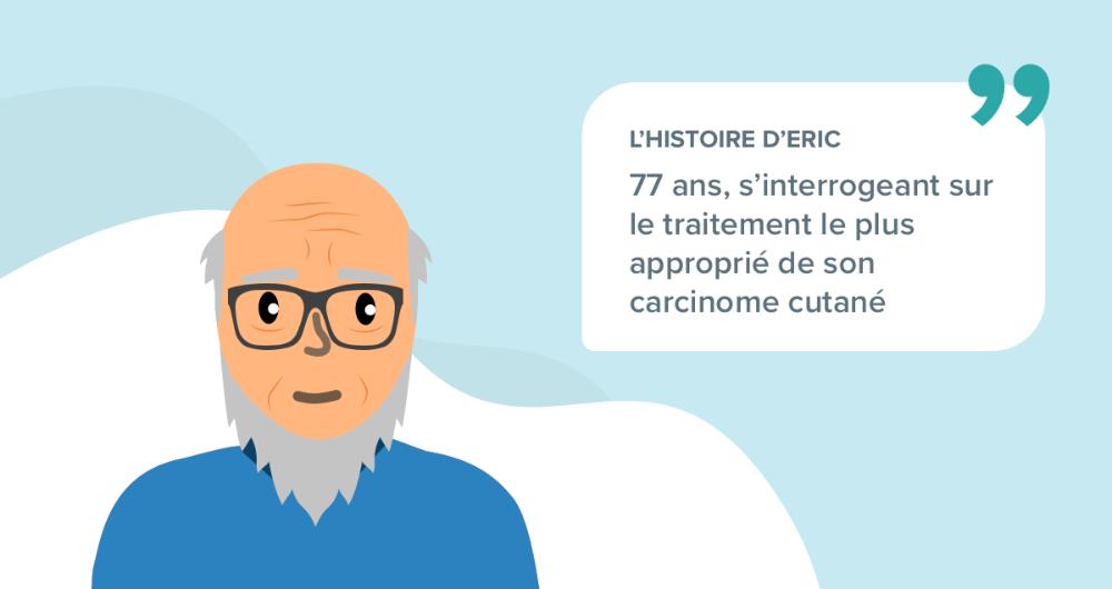 L'histoire d'Eric, 77 ans, s'interrogeant sur le traitement le plus approprié de son carcinome cutané