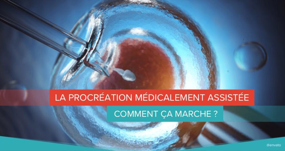 Procréation médicalement assistée : qu'est-ce que c'est ?