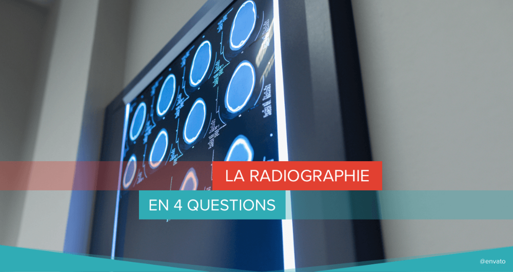 radiographie 4 questions