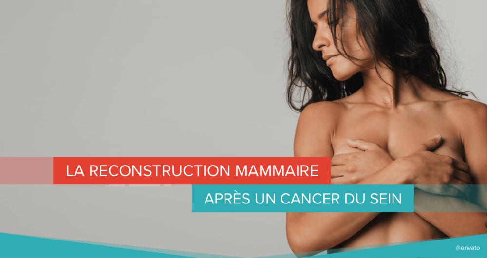 La reconstruction mammaire après un cancer du sein