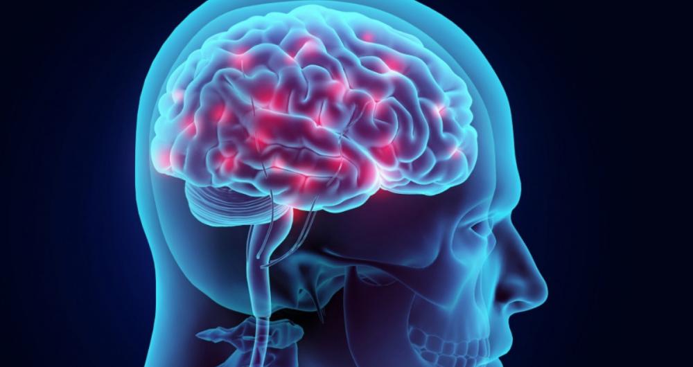 Maladie de Parkinson : le traitement par neurostimulation