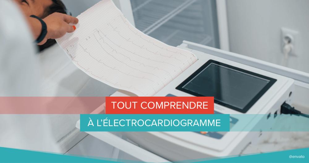 Tout comprendre à l'électrocardiogramme