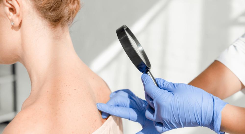 Tout savoir sur la peau et les maladies dermatologiques